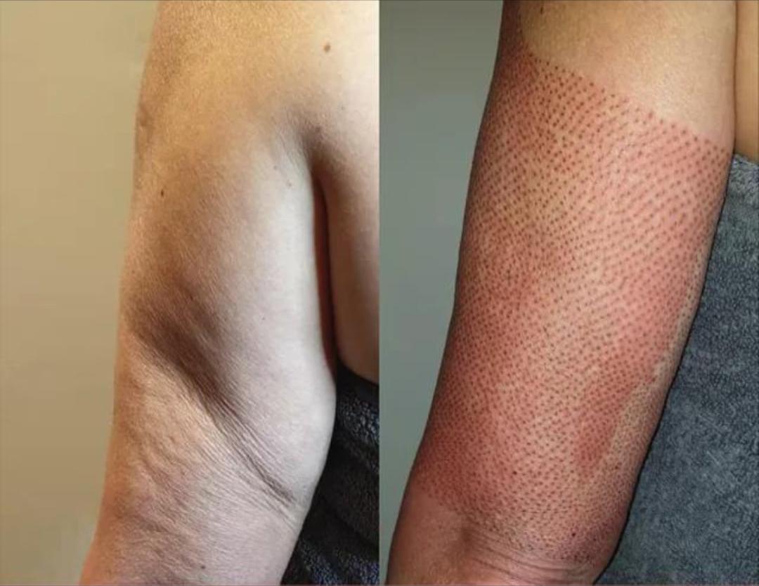 plasma-pen-zatezanje-kože